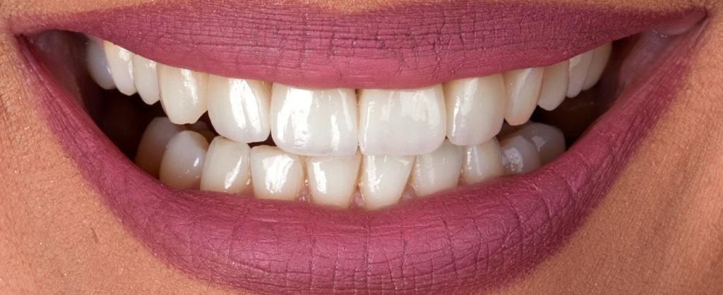 caz stomatologic, pacient Bianca - Premium Dental