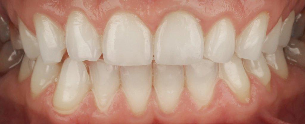 cazuistica, pacient Flavius - Premium Dental
