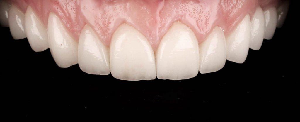caz stomatologic, pacient Roxana - Premium Dental