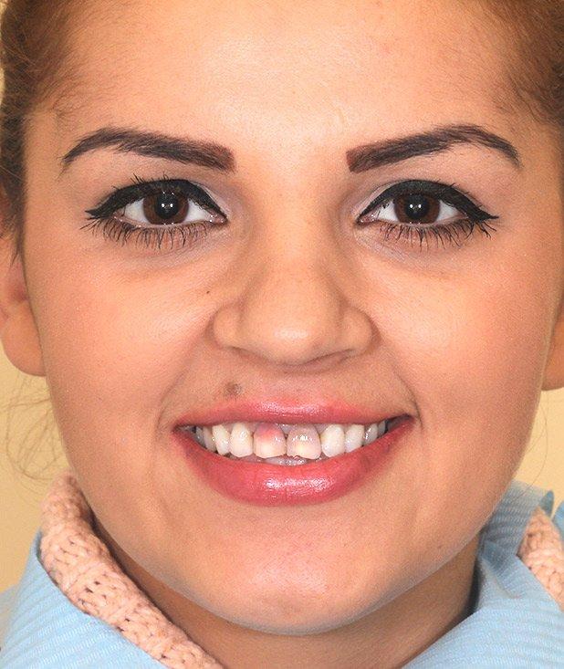 cazuistica, pacient Denisia - Premium Dental