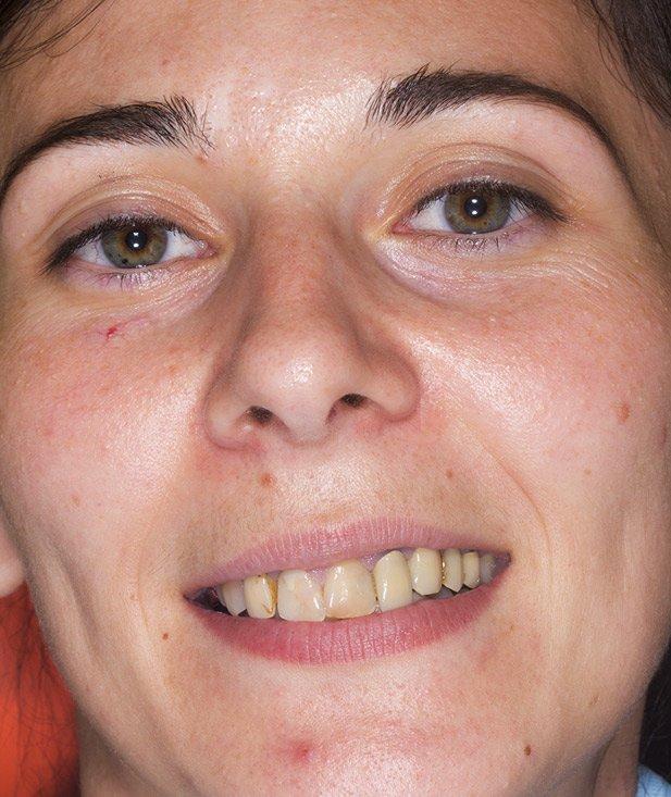 pacient Mihaela, zambet - inainte de tratament