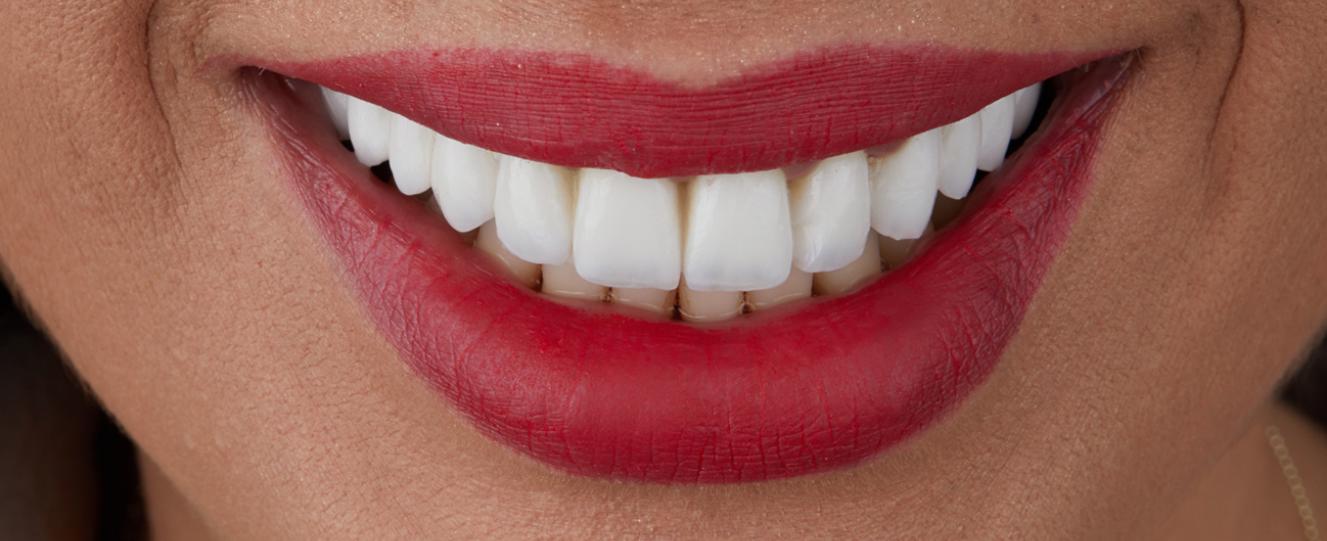 estetica dentara Premium Dental