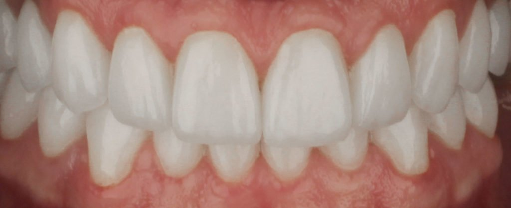 caz pacient Dan, tratat la clinica Premium Dental din Arad