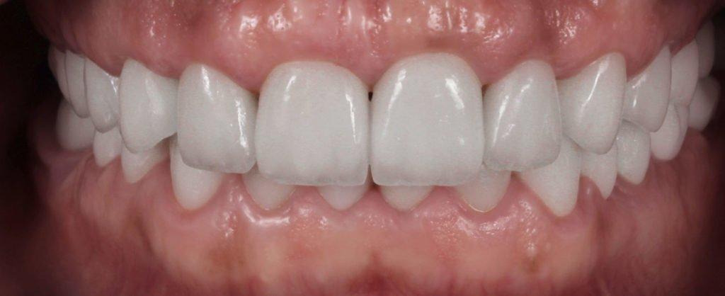 arcade dentare