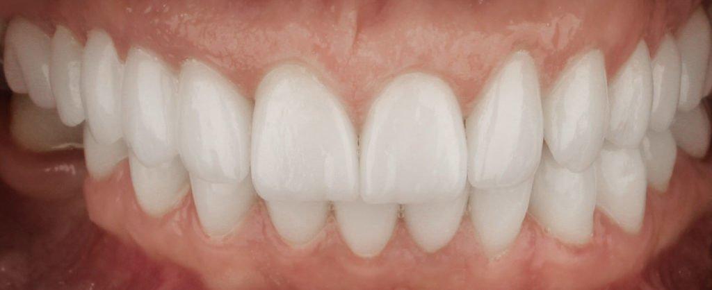 caz stomatologic, pacient Rodi - Premium Dental