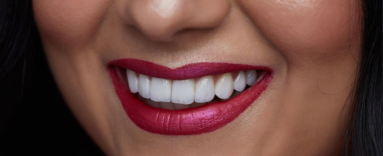 caz pacienta Mone - Premium Dental clinic Arad
