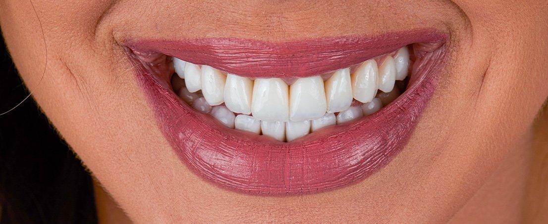 pacient Adelina - dupa TRATAMENT - zambetul perfect la Premium Dental