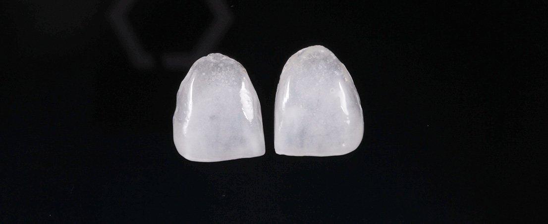 caz pacient Josephine - Premium Dental Arad