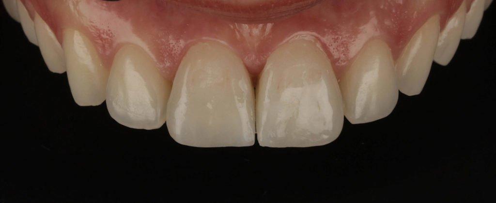 Josephina - pacient incantat Premium Dental Arad