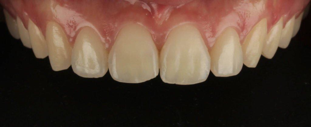 arcada superioara pacient Josephina (INAINTE) - Premium Dental