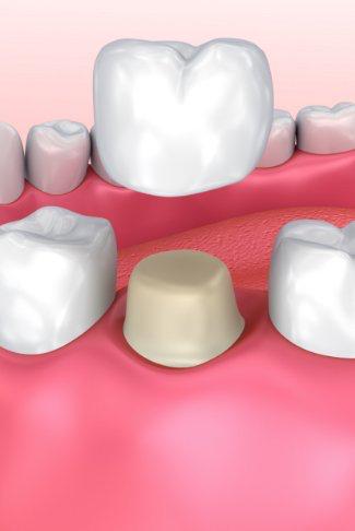 coroane dentare - Premium Dental Arad