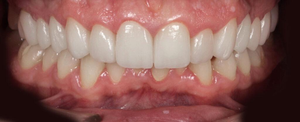 Dan, pacient Premium Dental Arad