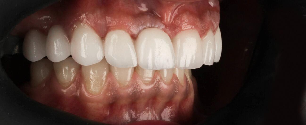 cazuistica stomatologie Arad, Claudia Premium Dental