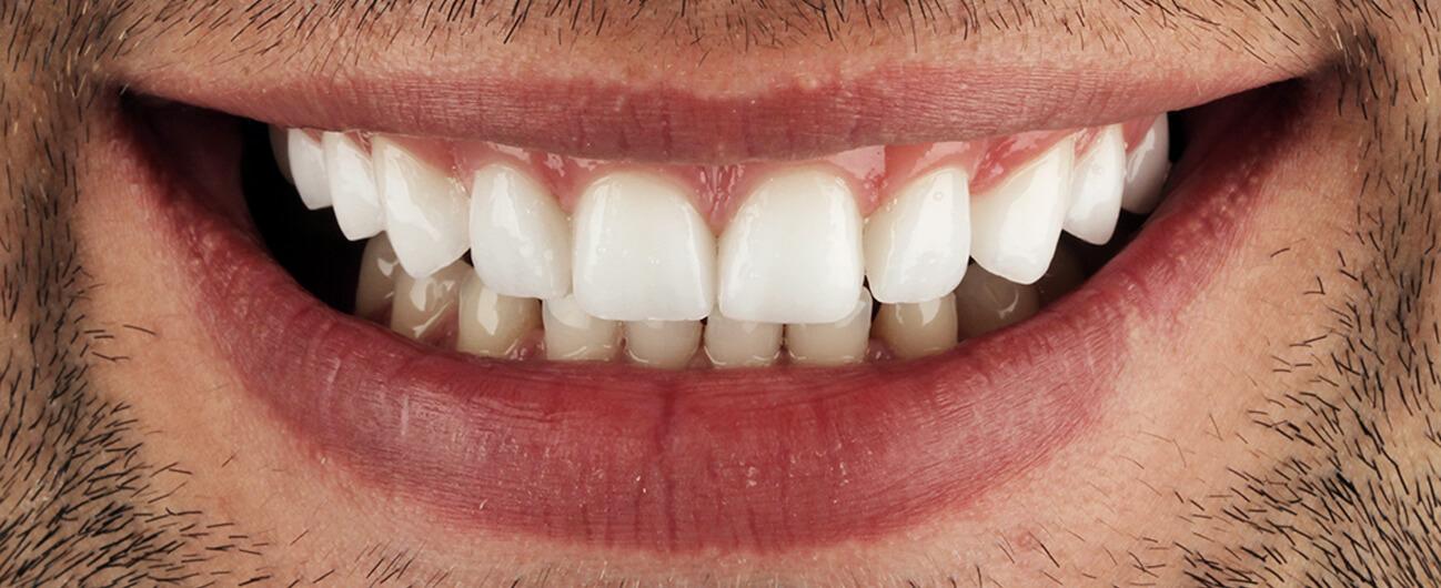 dantura pacient Beny, dupa tratament Premium Dental
