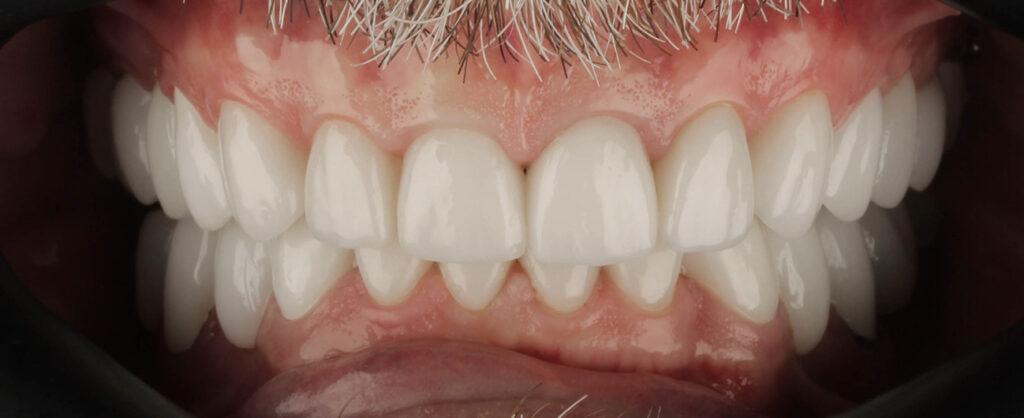pacient Nick Morariu, fatete Arad, Premium Dental