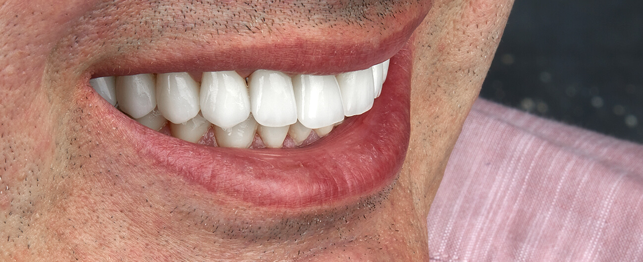 pacient Lucian Timohe, Premium Dental Arad