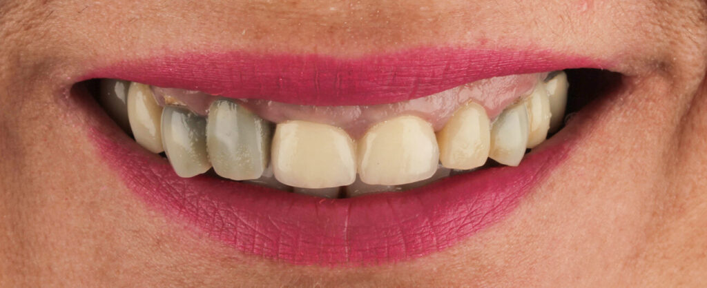pacient Simona Andrei, fatete Arad, Premium Dental